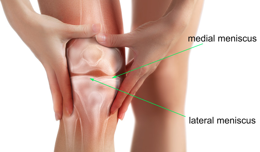 diagram of a knee showing the two different meniscus